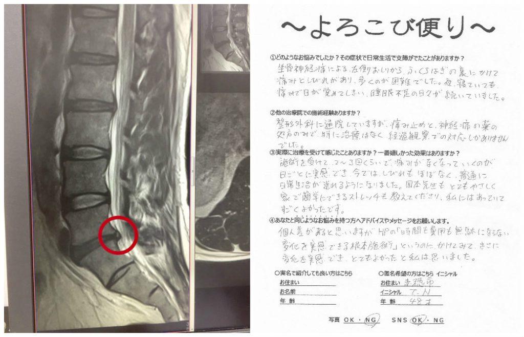 赤穂 坐骨神経痛 治療