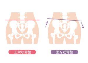 産後骨盤矯正が必要な6つの理由①